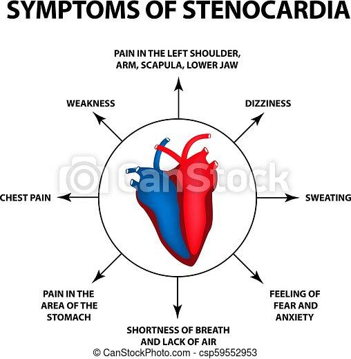 Symptome einer Angina-Pectoris. Herzkrankheit. Weltherztag. Vector Illustration auf isoliertem Hintergrund. - csp59552953