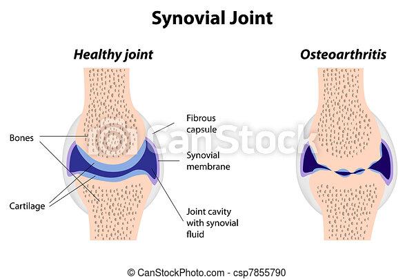 Synovialgelenk normal und Arthritis. - csp7855790