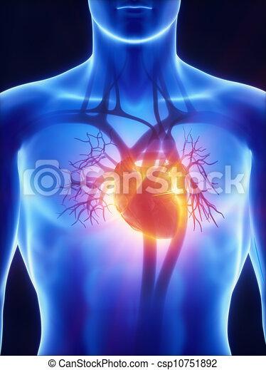 system, röntgenaufnahme, kardiovaskulär - csp10751892