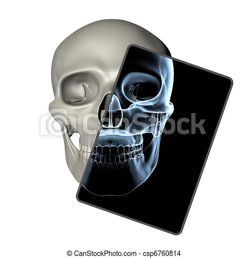 Menschlicher Schädel - Röntgenbild Frontsicht - csp6760814
