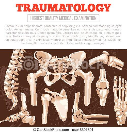 Traumatologie Medizin-Poster mit Knochen und Gelenk - csp48801301
