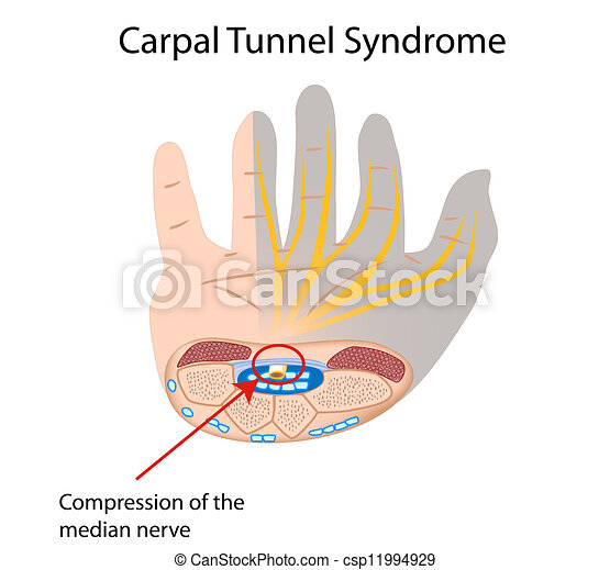 tunnel, syndrom, carpal, eps10 - csp11994929
