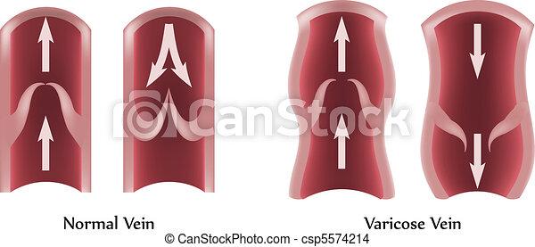 Varicose Vene - csp5574214