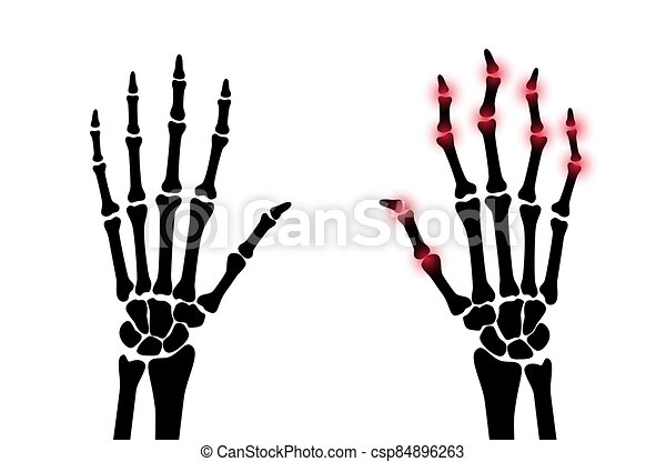 x, arthrits, strahl - csp84896263