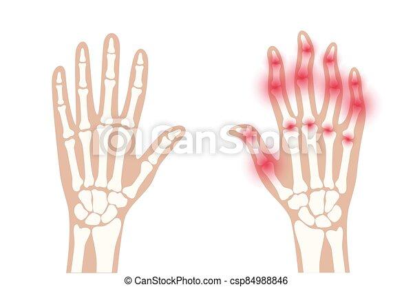 x, arthrits, strahl - csp84988846