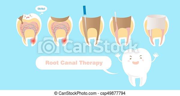 Zahn mit Wurzelkanaltherapie. - csp49877794