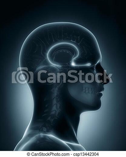 zwiebel, medizin, olfactory, röntgenaufnahme, überfliegen - csp13442304